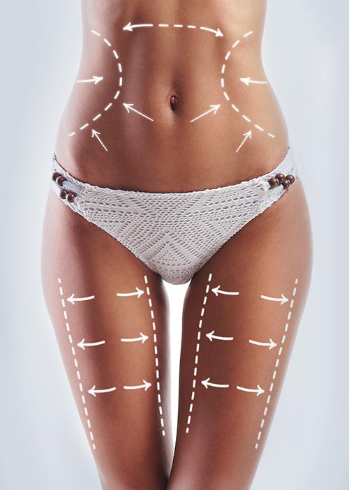 liposuction surgeons london