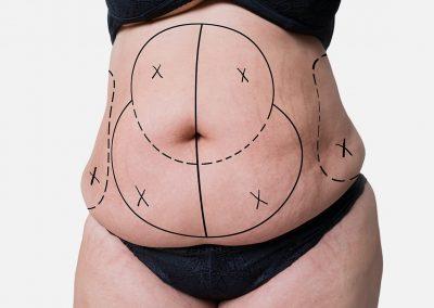 abdomen_1