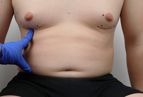 male breast fat removal